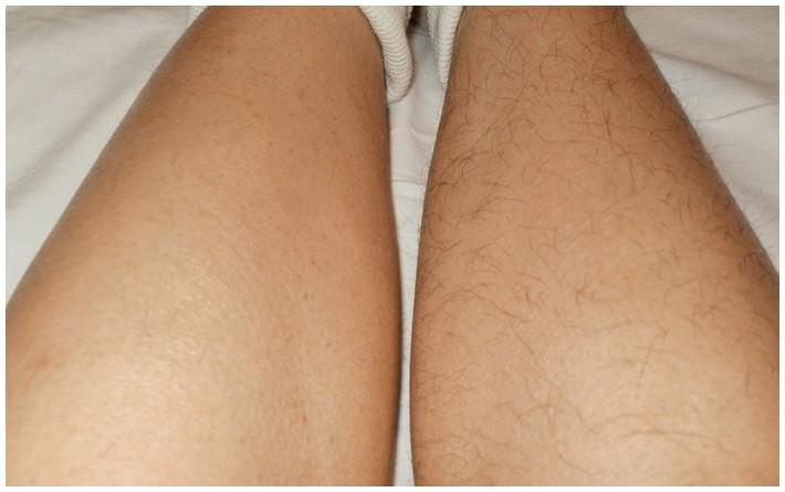Почему у женщин на ногах растут волосы на